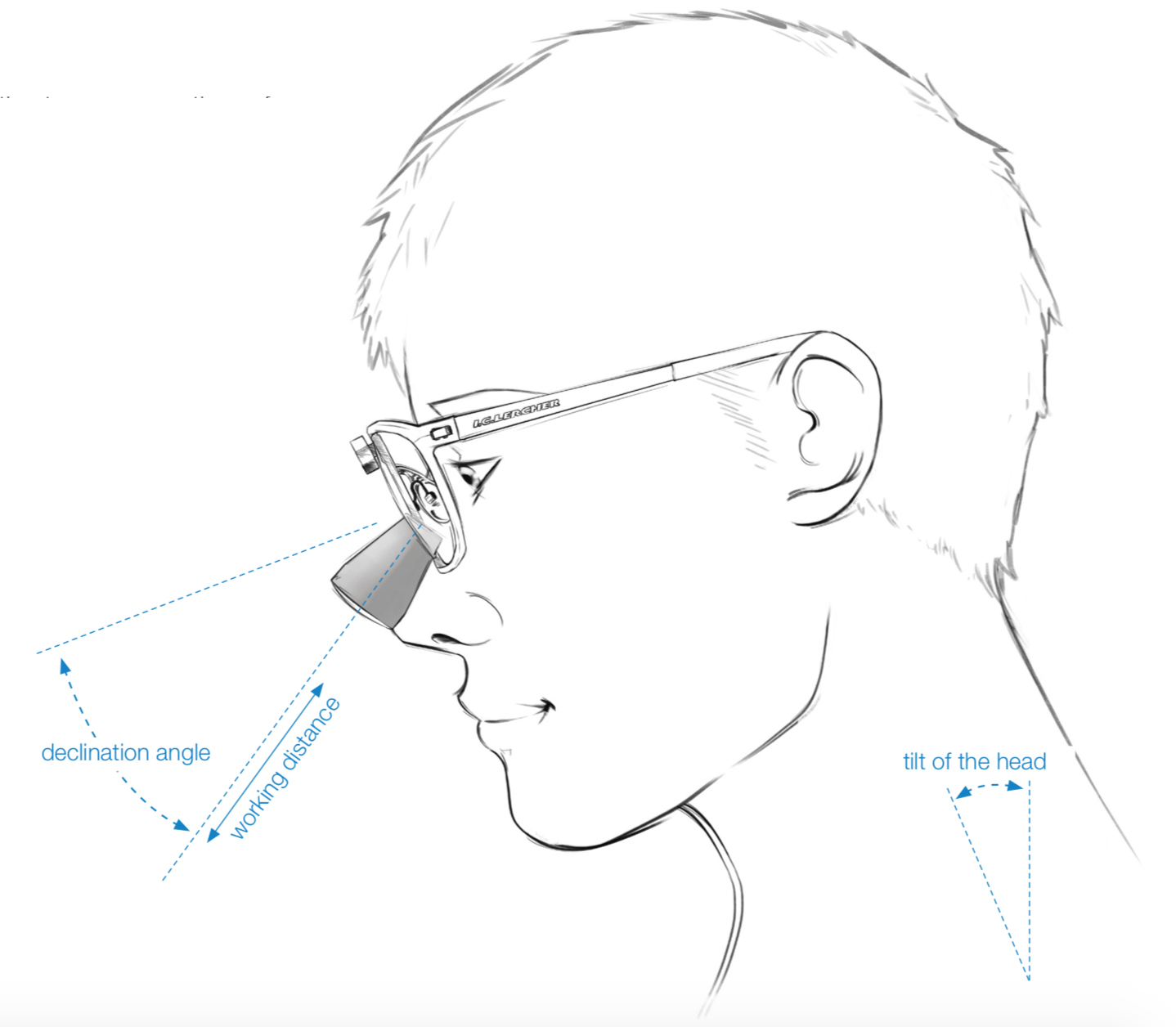 Hovedhældning ved dentale lupbriller